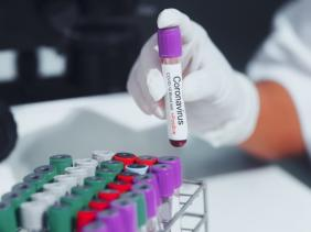 OMS : les effets de la pandémie de la Covid-19 seront ressentis pendant des décennies Covid-19-positif-3_2